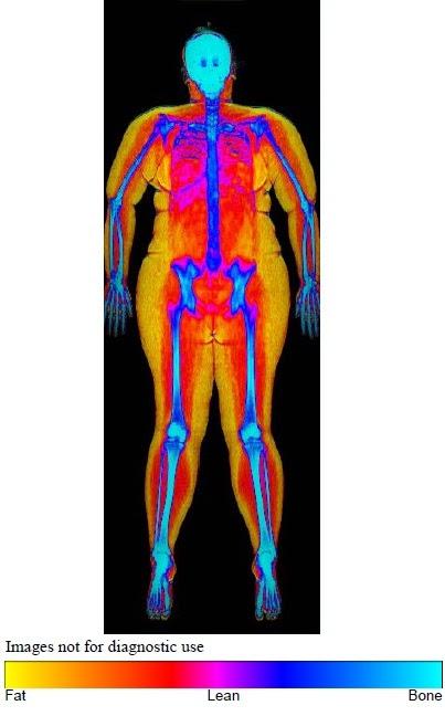 body fat percentage pictures dexa