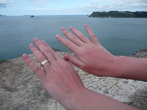 Sunburn on a woman's hands after a day at Hot ...