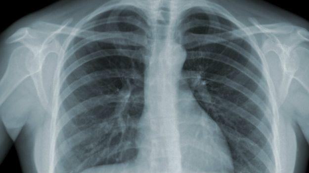 Pulmões com tuberculose