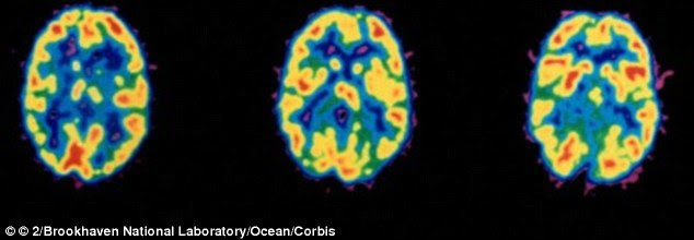 The anguish of a break up activates the same part of the brain that is stimulated during cocaine addiction, a Stony Brook University found. Pictures are scans of brains on cocaine (file photo)