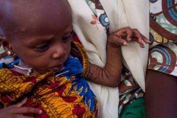Una niña con malnutrición aguda severa es atendida en el asentamiento informal de Nguel Wanzam de Diffa, Níger.