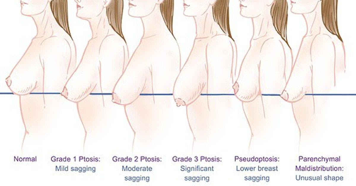 Natural Way of Preventing Sagging Breasts