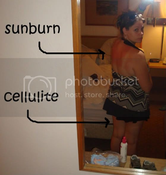 sunburn,cellulite