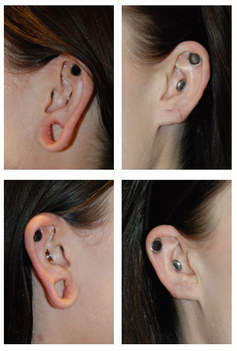 How To Close Stretched Ears Without Surgery F Fxyz 2019