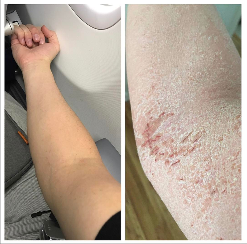 8 Products For Healing Eczema After Quitting Steroid Creams Tsw