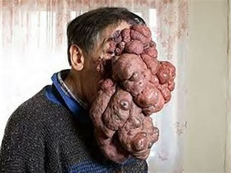 José Mestre : The Man With The 5KG Tumour On His Face   Health   Nigeria