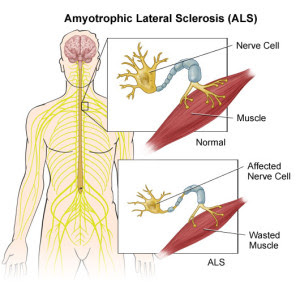 Amyotrophic-Lateral-Sclerosis