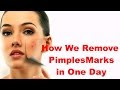 How To Get Rid Of Pimples Marks On Face