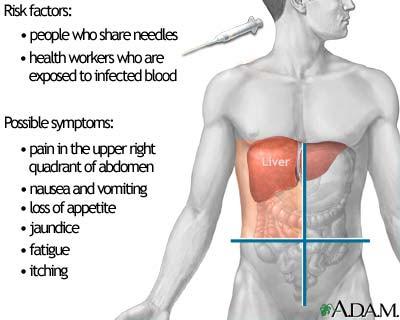 Nursing Assessment for Hepatitis