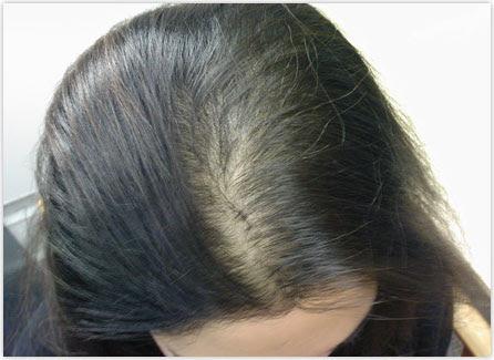 Perdita di capelli da stress come comportarsi in questi casi - caduta capelli  stress ricrescono 2385af64e24c