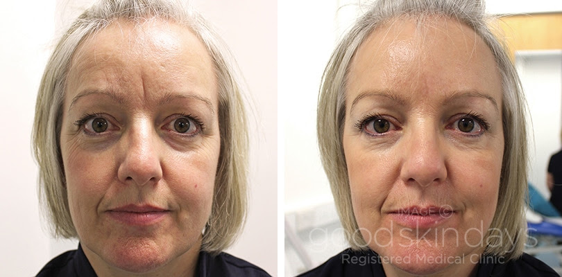 Signs of Bad Botox - Cosmetic Treatments - DailyBeauty - NewBeauty