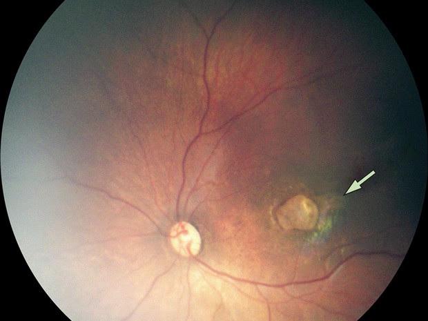 Exame de imagem mostra um caso de atrofia macular grave em bebê com microcefalia  (Foto: The Lancet/Divulgação)
