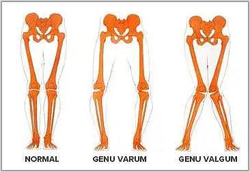 http://columnavertebral.net/wp-content/uploads/2014/09/Genu-Varo-%E2%80%93-Piernas-Arqueadas.png
