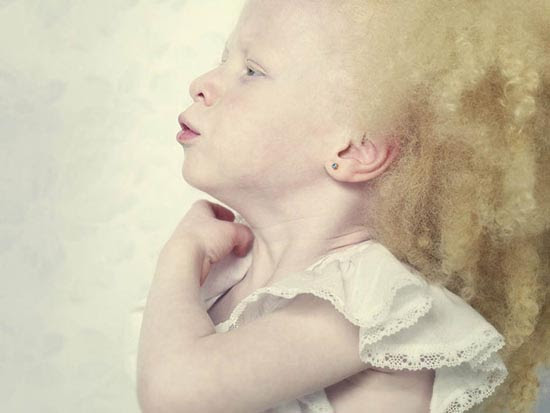 Albino (12)