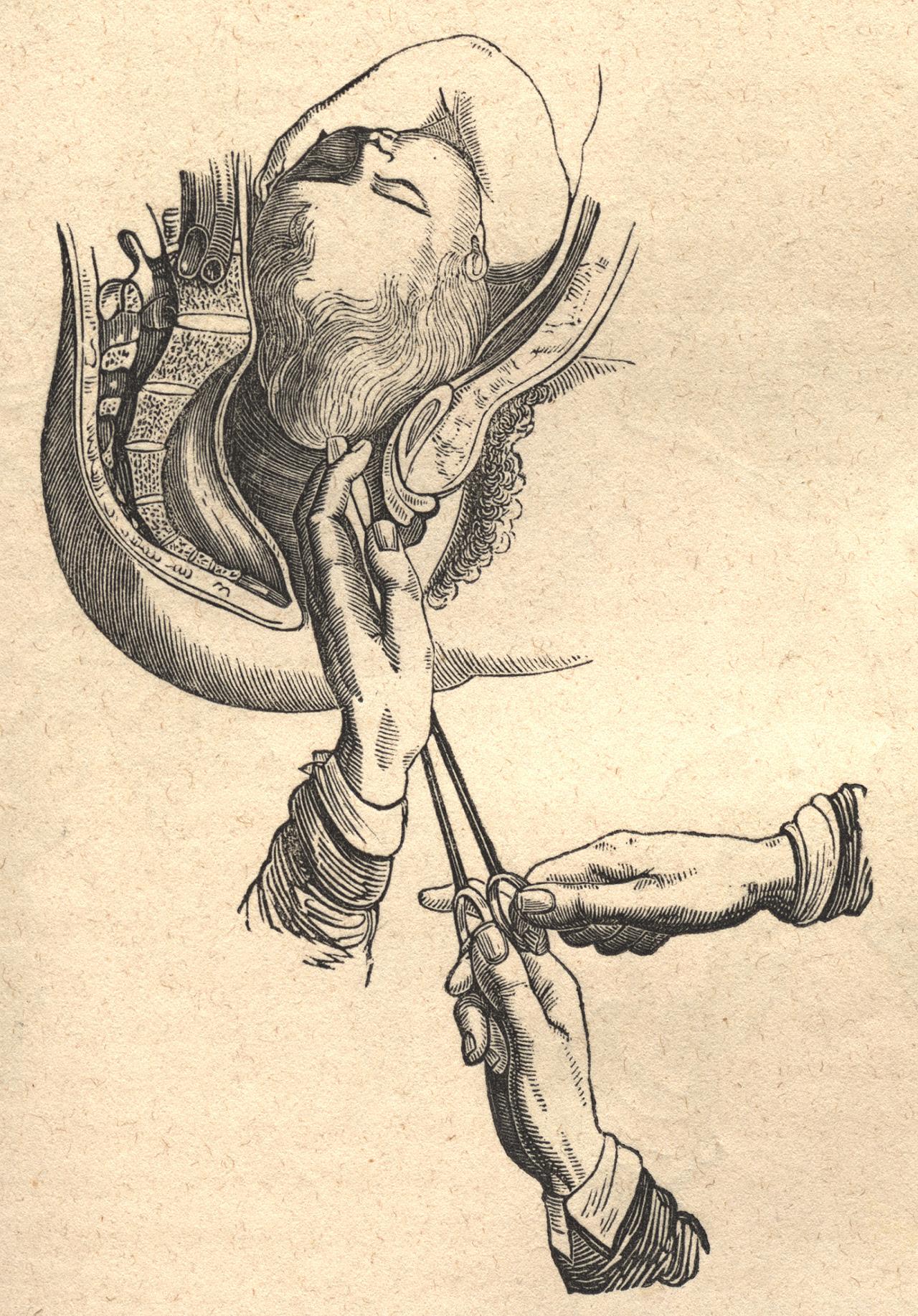 http://www.nlm.nih.gov/exhibition/cesarean/images/craniotomy.jpg