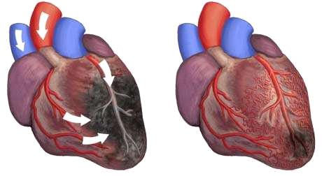 Non Surgical Heart Block Treatment Mumbai Eecp Treatment