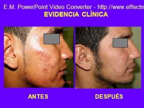 Gialuronovaya el ácido contra el acné