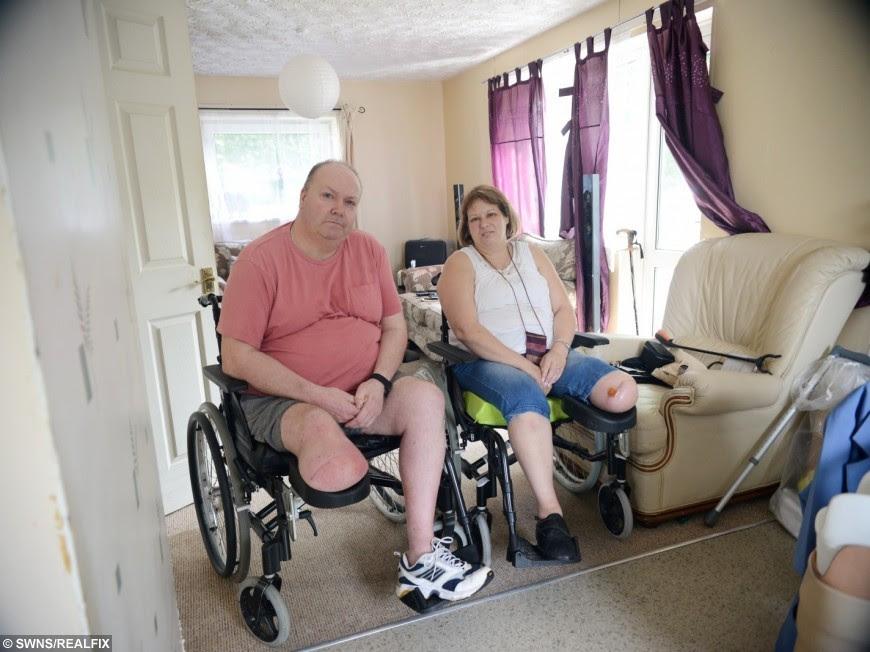 Susan Mortimer and Robert Hackney had legs amputated in the same week.