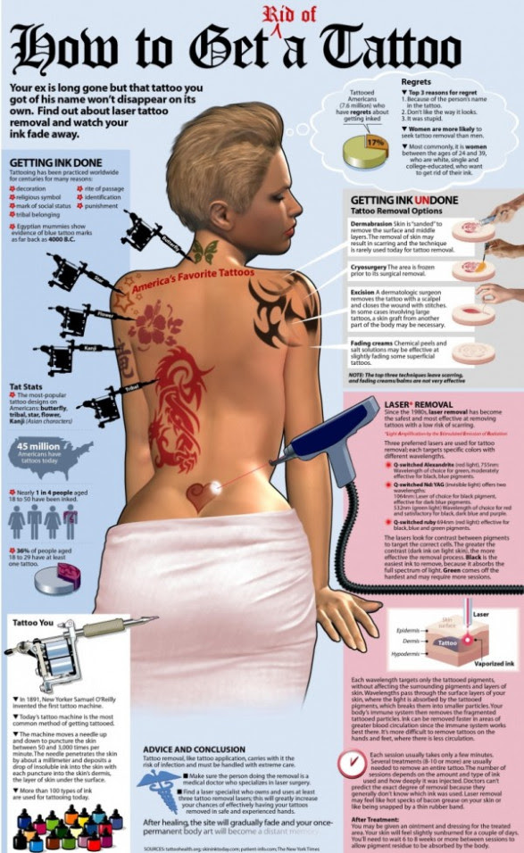 Tattoo Removal The Ultimate Guide To Tattoo Removal
