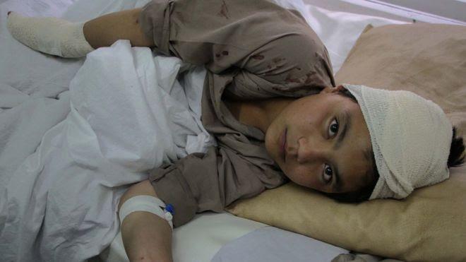 Criança afegã é hospitalizada após um ataque do Taleban em Cabul, em abril deste ano
