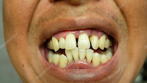 45+ How To Fix A Crooked Smile Naturally