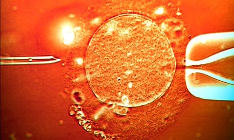 IVF treatment sperm being injected into human egg