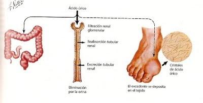 alimentos no permitidos acido urico como curar la gota del pie recetas caseras contra la gota