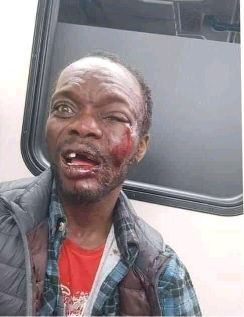 Onitsha Man Preaching in a bus got beaten to coma after condoms fell from his Bible.