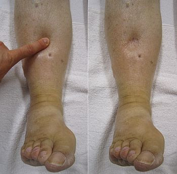 English: Pedal edema during and after the appl...