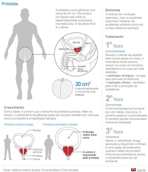 Info Próstata Câncer 3 (Foto: Arte / G1)