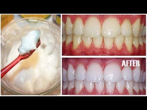 وصفة لتبييض الأسنان في المنزل في 2 دقيقة كيف تبيض أسنانك الصفراء وصفة مجربة
