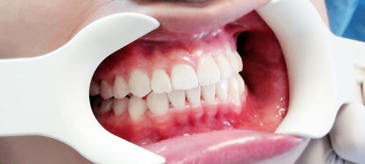 teeth after invisalign typicalben