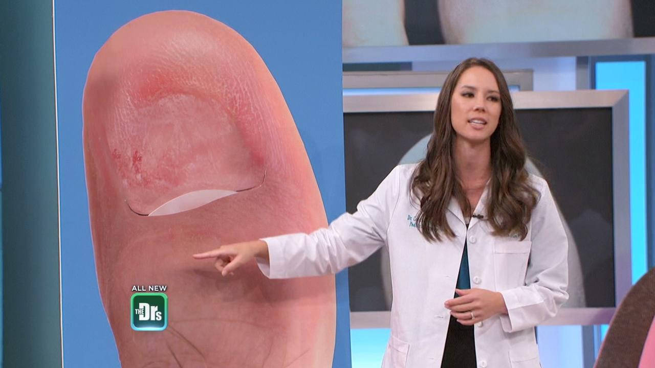 What To Do if Your Toenail Falls Off | The Doctors TV Show