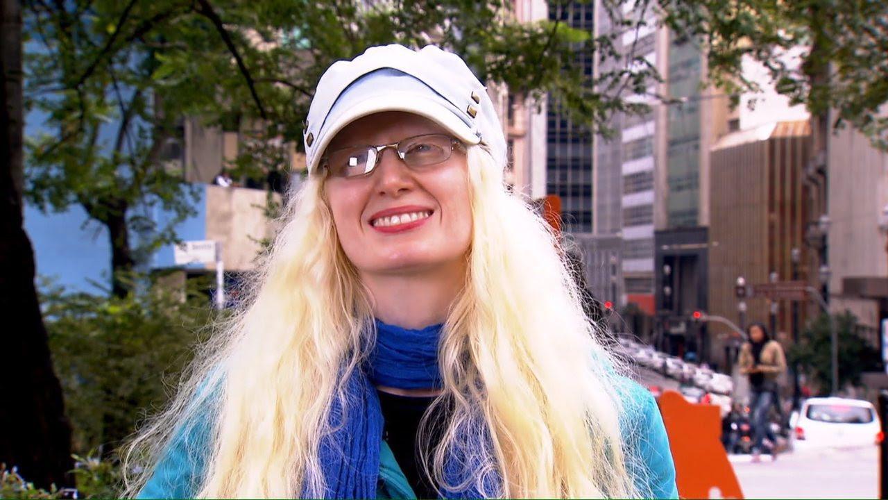Resultado de imagem para 'Invisíveis': a realidade dos albinos brasileiros