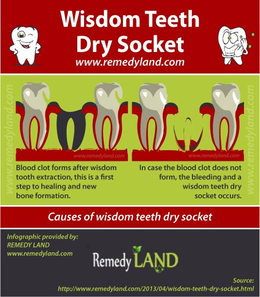 What Does Wisdom Teeth Blood Clot Look Like Teethwalls