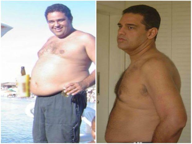 Antônio chegou a pesar 125 kg e levava uma vida sedentária. Agora, mantém o peso por meio de uma dieta balanceada e eliminou quase 40 kg em cinco meses. (Foto: Arquivo Pessoal)