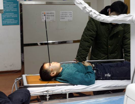 http://a.abcnews.com/images/Health/CEN_ArrowInHead_01_081216_ssh.jpg