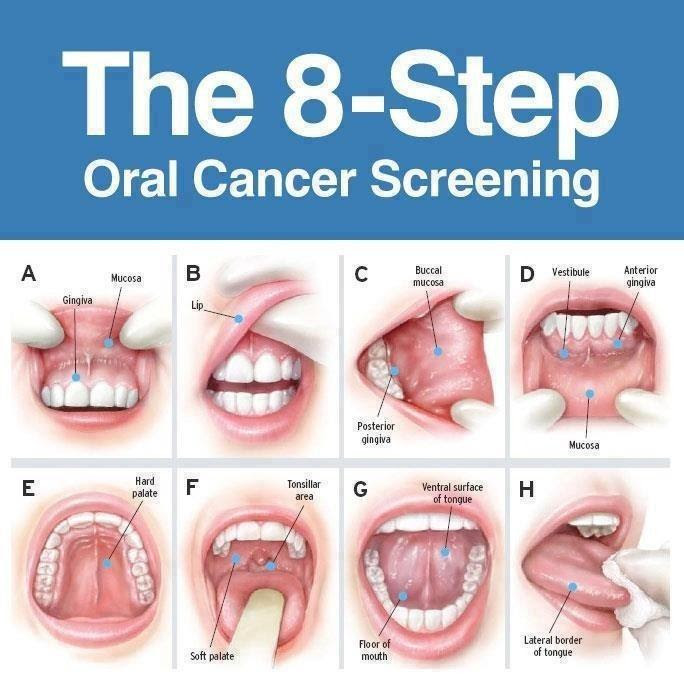 8 Mouth Cancer Symptoms You Constantly Ignore