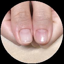 深爪矯正の行える東京赤坂のネイルサロン Manibloom マニブルーム