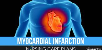 5 Congestive Heart Failure Nursing Care Plans - Nurseslabs