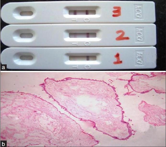 Negative Pregnancy Test Kit Pictures - Pregnancy Symptoms