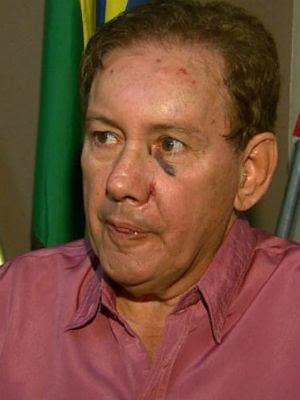 Prefeito de Nova Europa foi agredido por ex-servidora que foi demitida (Foto: Felipe Lazzarotto/EPTV)
