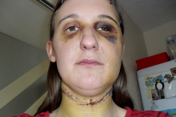 Collect photo of Natalie Allman a week after she was attacked by her partner Jason Hughes