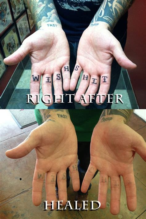 hard areasand examples healed
