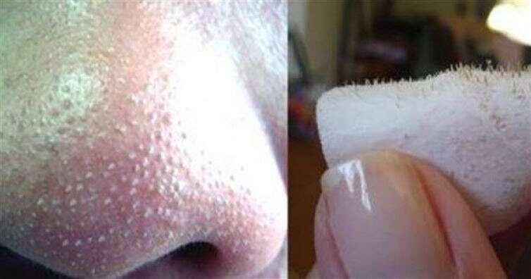 Aprenda como remover cravos do nariz usando água, sal e limão