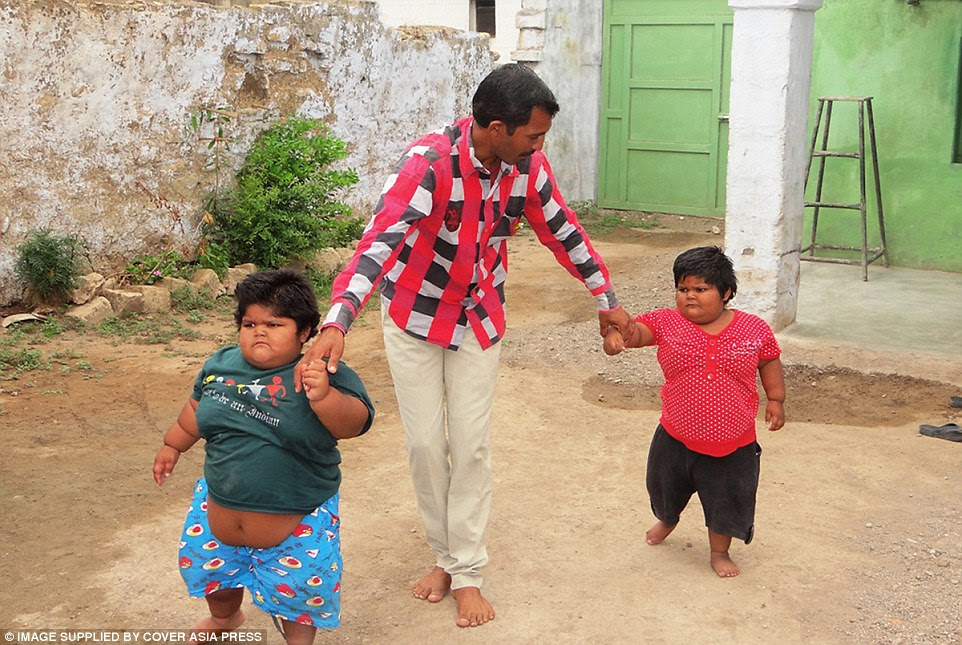 Yogita Rameshbhai Nandwana (right), 5, and Amisha (left), 3, finally took their first steps without help after specialists put them on a restrictive diet because their parents were so concerned for their health