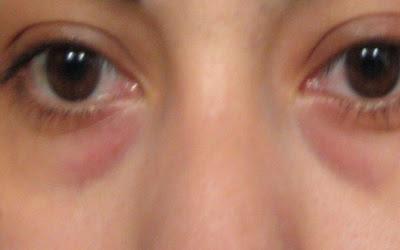 What Is Causing the Dark Circles under My Eyes? - WhatsUpMum