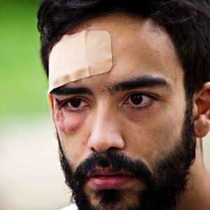 O estudante André Baliera foi espancado em 2012 por dois homens