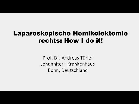 Laparoskopische Hemikolektomie rechts: How I do it! // Prof. Dr. Andreas Türler, Bonn
