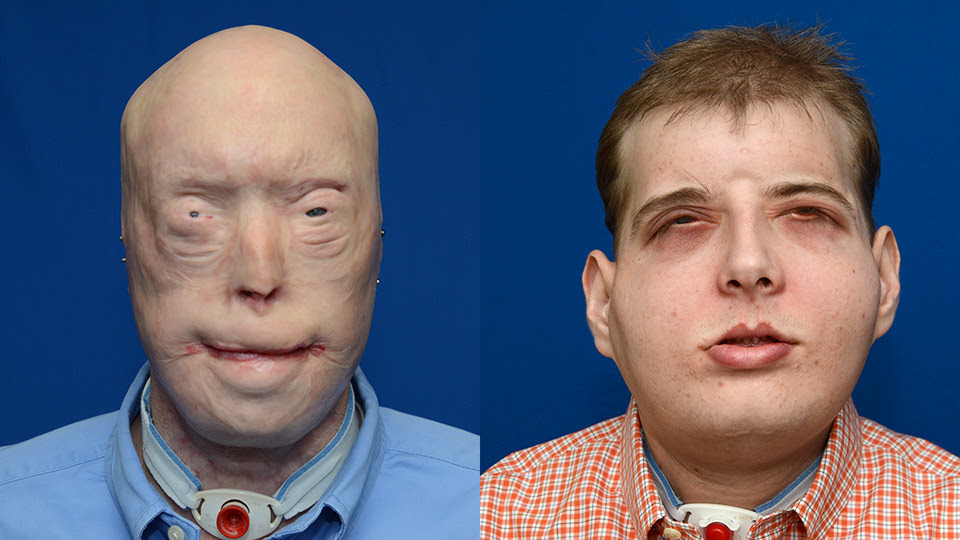 http://nyulangone.org/files/patrick-hardison-before-and-after.jpg
